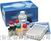 elisa试剂盒  大鼠睾酮(T)酶联免疫(ELISA)试剂盒