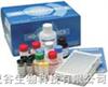 elisa试剂盒  犬转移生长因子β1(TGF-β1)酶联免疫(ELISA)试剂盒